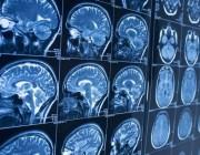 人工智能技术新技能 可以提前 10 年发现老年痴呆症!