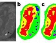 「极简机器学习」,从少量数据中学习精确特征的卷积神经网络