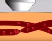 """精准医学""""黑科技"""":在乱麻般的血管网中,用激光操控单个血管"""